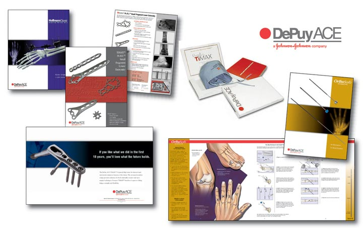 Depuy Ace Printed Advertising